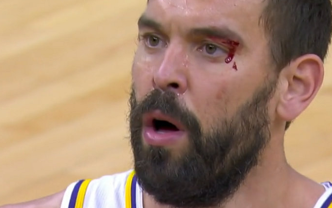 【影片】硬漢!小Gasol戰舊主被一把拽倒,眉骨都打出血,堅持重返賽場繼續戰鬥!-籃球圈